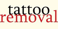 On Second Thought Laser Tattoo Removal Treatment